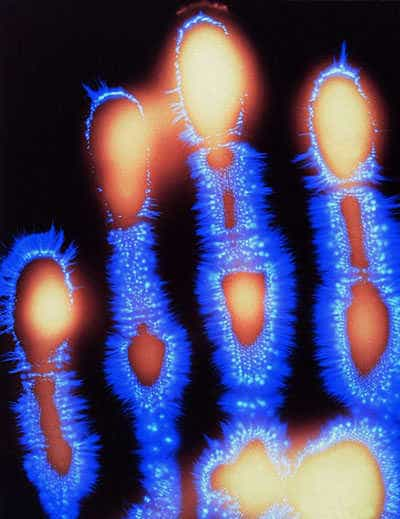 Kirlian photo of a hand