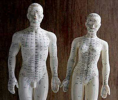 Acupuncture dolls.